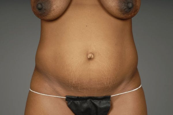 Mommy Makeover Gallery - Patient 3689101 - Image 11