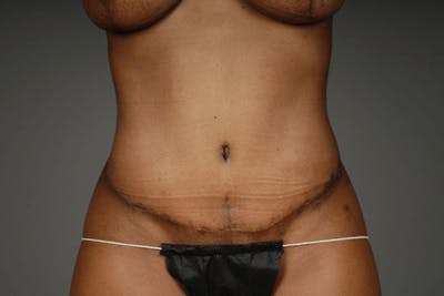 Mommy Makeover Gallery - Patient 3689101 - Image 12