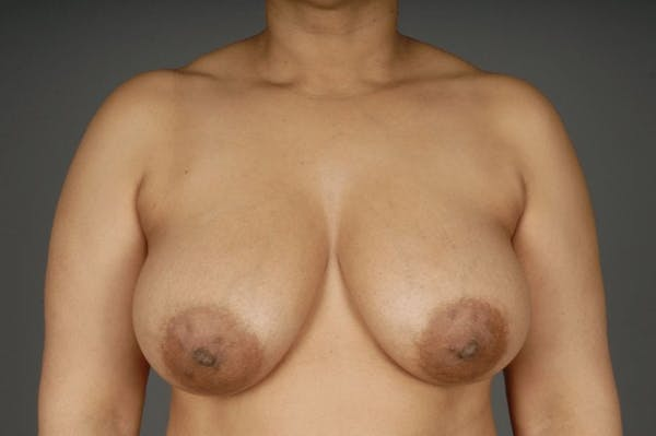 Mommy Makeover Gallery - Patient 3689102 - Image 1
