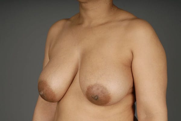 Mommy Makeover Gallery - Patient 3689102 - Image 3