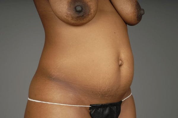 Mommy Makeover Gallery - Patient 3689101 - Image 15