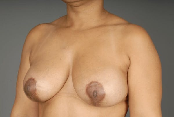 Mommy Makeover Gallery - Patient 3689102 - Image 4