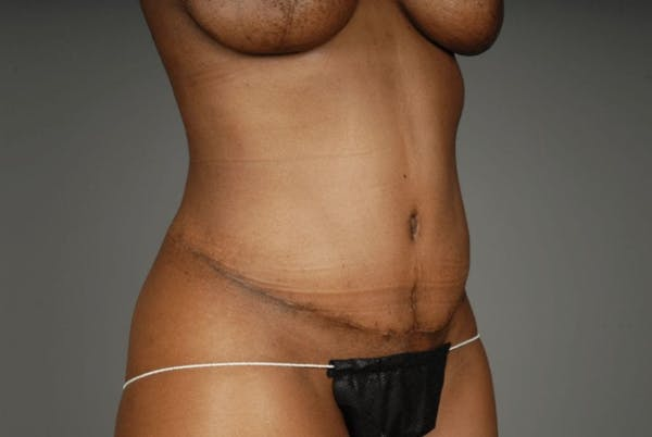 Mommy Makeover Gallery - Patient 3689101 - Image 16