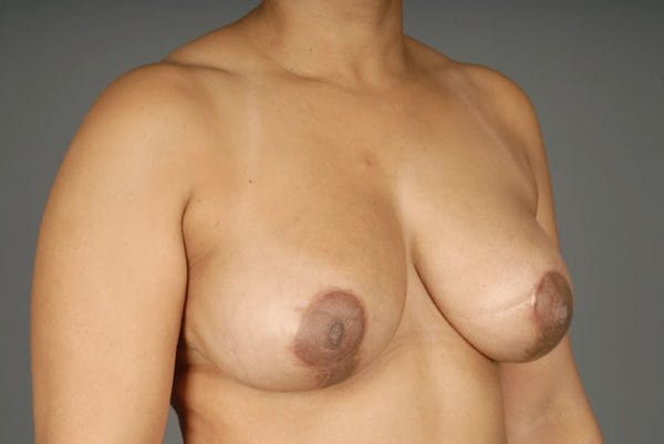Mommy Makeover Gallery - Patient 3689102 - Image 6