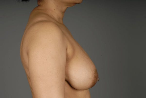Mommy Makeover Gallery - Patient 3689102 - Image 7