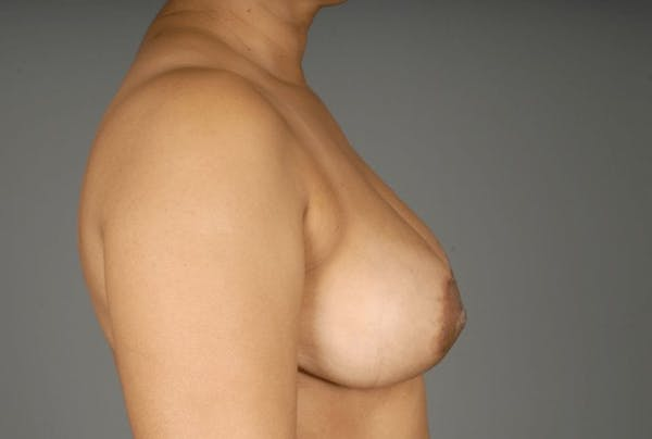 Mommy Makeover Gallery - Patient 3689102 - Image 8