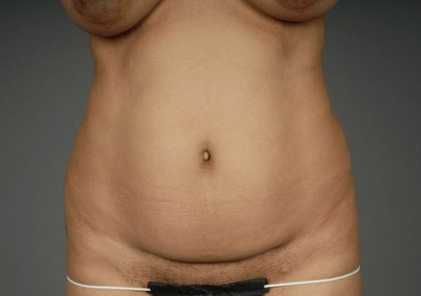 Mommy Makeover Gallery - Patient 3689102 - Image 11