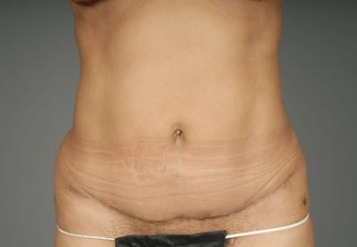 Mommy Makeover Gallery - Patient 3689102 - Image 12