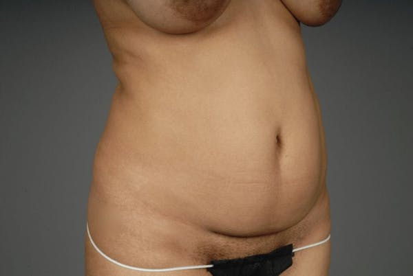 Mommy Makeover Gallery - Patient 3689102 - Image 13