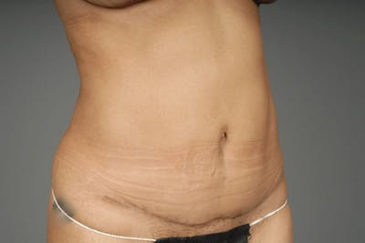 Mommy Makeover Gallery - Patient 3689102 - Image 14