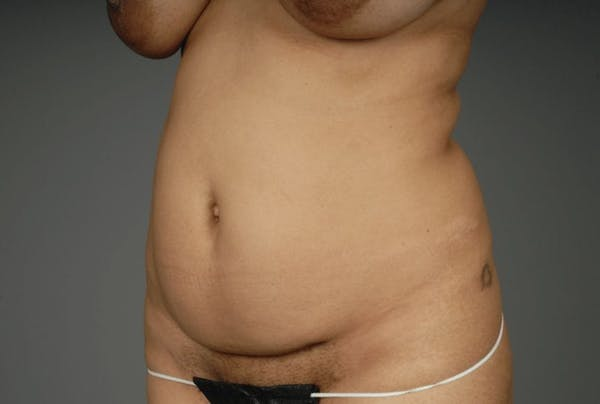 Mommy Makeover Gallery - Patient 3689102 - Image 15