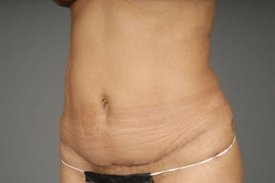 Mommy Makeover Gallery - Patient 3689102 - Image 16