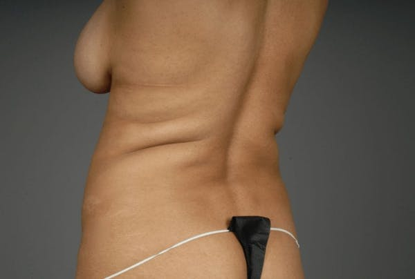 Mommy Makeover Gallery - Patient 3689102 - Image 17