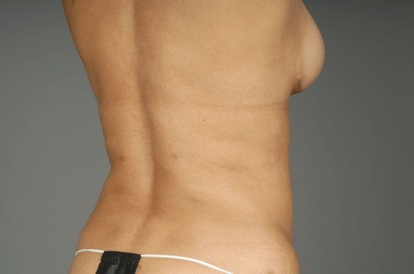 Mommy Makeover Gallery - Patient 3689102 - Image 20