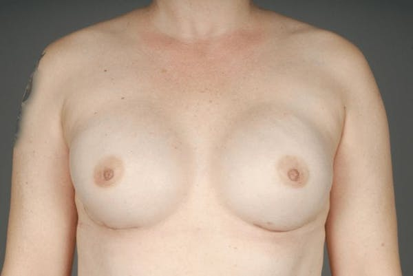 Direct-To-Implant Gallery - Patient 3689068 - Image 2