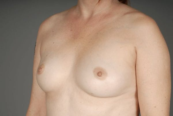 Direct-To-Implant Gallery - Patient 3689068 - Image 3