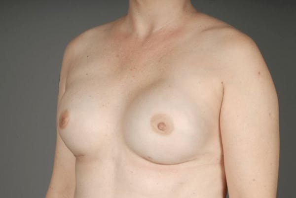 Direct-To-Implant Gallery - Patient 3689068 - Image 4