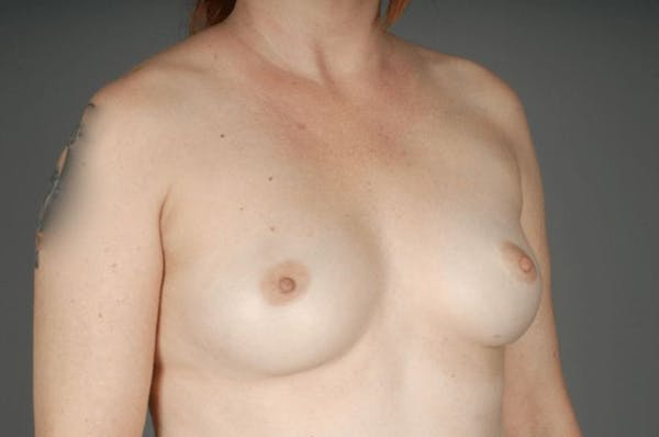 Direct-To-Implant Gallery - Patient 3689068 - Image 5