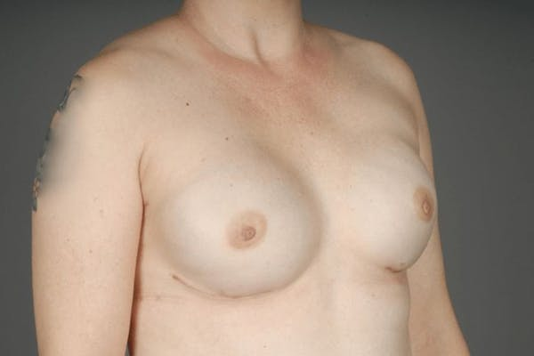 Direct-To-Implant Gallery - Patient 3689068 - Image 6