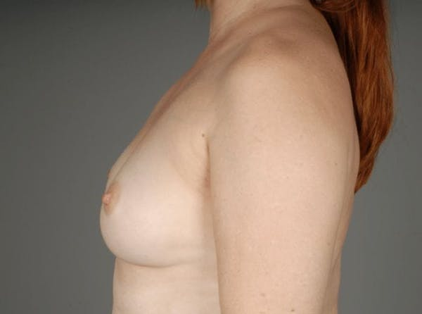 Direct-To-Implant Gallery - Patient 3689068 - Image 7