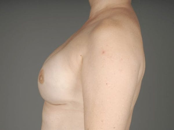 Direct-To-Implant Gallery - Patient 3689068 - Image 8
