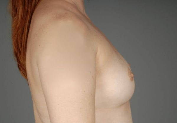 Direct-To-Implant Gallery - Patient 3689068 - Image 9