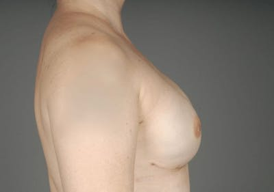 Direct-To-Implant Gallery - Patient 3689068 - Image 10