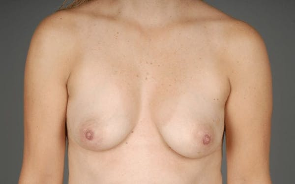 Direct-To-Implant Gallery - Patient 3689069 - Image 1
