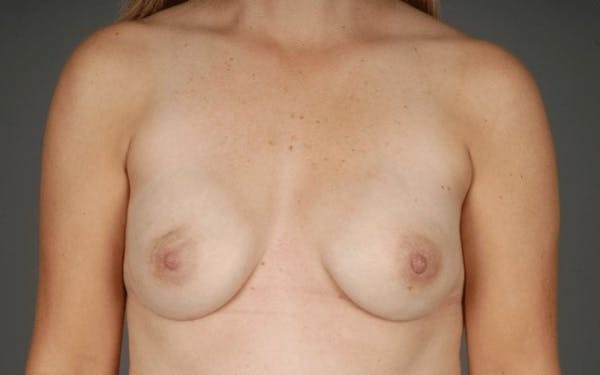 Direct-To-Implant Gallery - Patient 3689069 - Image 2