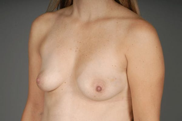 Direct-To-Implant Gallery - Patient 3689069 - Image 3