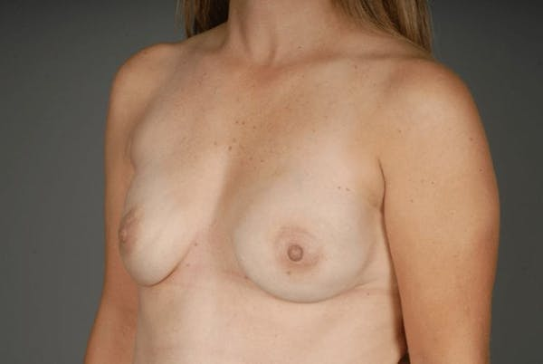 Direct-To-Implant Gallery - Patient 3689069 - Image 4