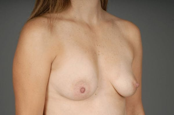 Direct-To-Implant Gallery - Patient 3689069 - Image 5