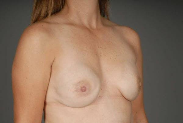 Direct-To-Implant Gallery - Patient 3689069 - Image 6