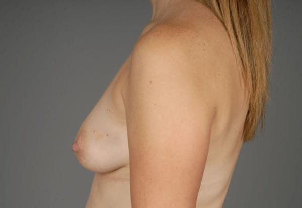 Direct-To-Implant Gallery - Patient 3689069 - Image 7