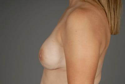 Direct-To-Implant Gallery - Patient 3689069 - Image 8