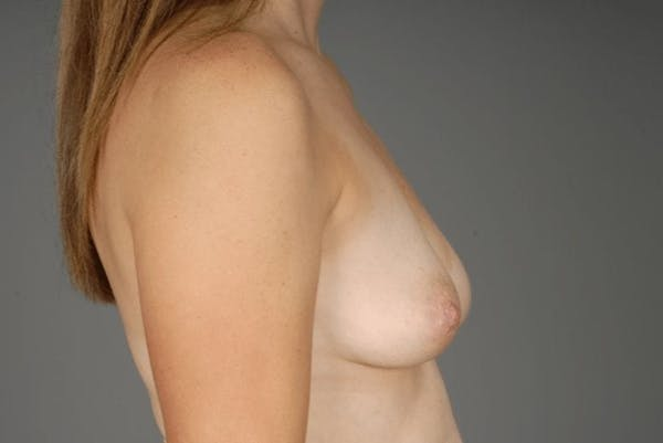Direct-To-Implant Gallery - Patient 3689069 - Image 9