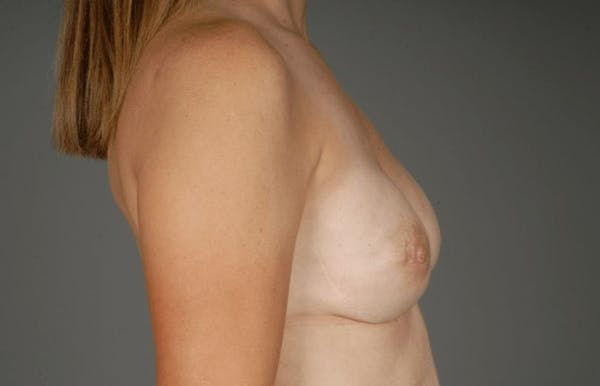 Direct-To-Implant Gallery - Patient 3689069 - Image 10