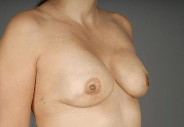 Direct-To-Implant Gallery - Patient 3689070 - Image 4