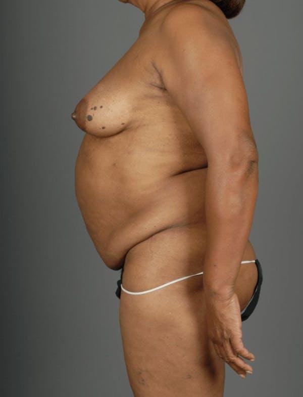 Deep Inferior Epigastric Artery Perforator Flap Gallery - Patient 4002551 - Image 7