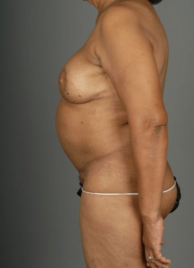Deep Inferior Epigastric Artery Perforator Flap Gallery - Patient 4002551 - Image 8