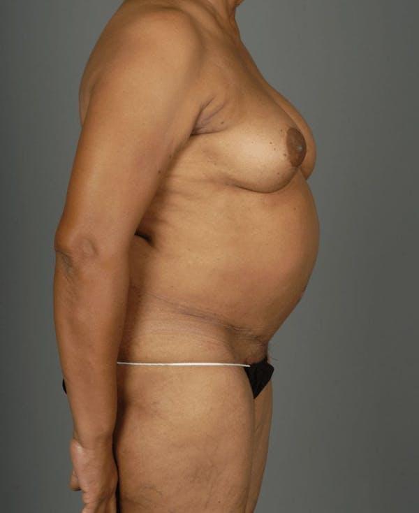Deep Inferior Epigastric Artery Perforator Flap Gallery - Patient 4002551 - Image 10