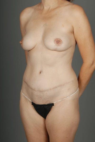 Deep Inferior Epigastric Artery Perforator Flap Gallery - Patient 4002547 - Image 4
