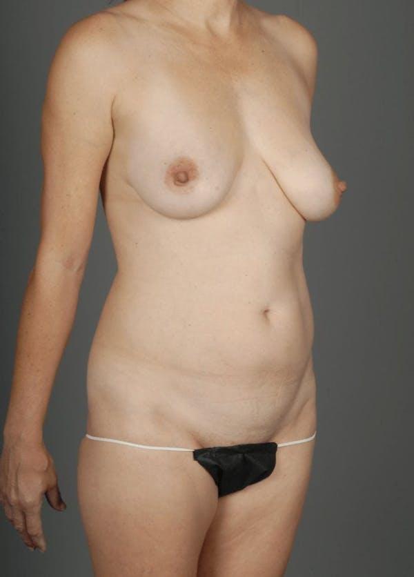 Deep Inferior Epigastric Artery Perforator Flap Gallery - Patient 4002547 - Image 5