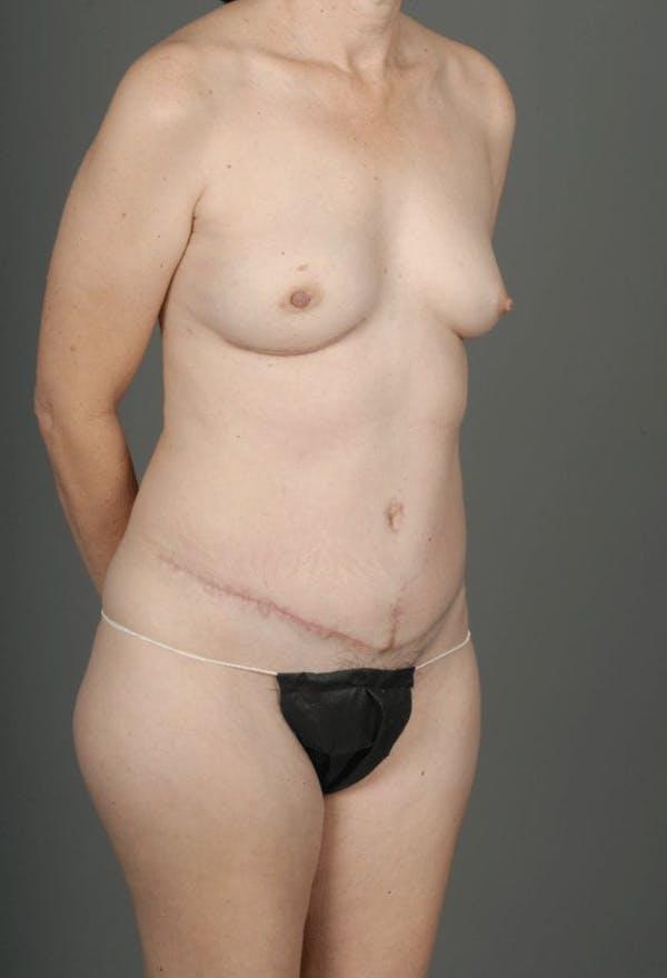 Deep Inferior Epigastric Artery Perforator Flap Gallery - Patient 4002548 - Image 6