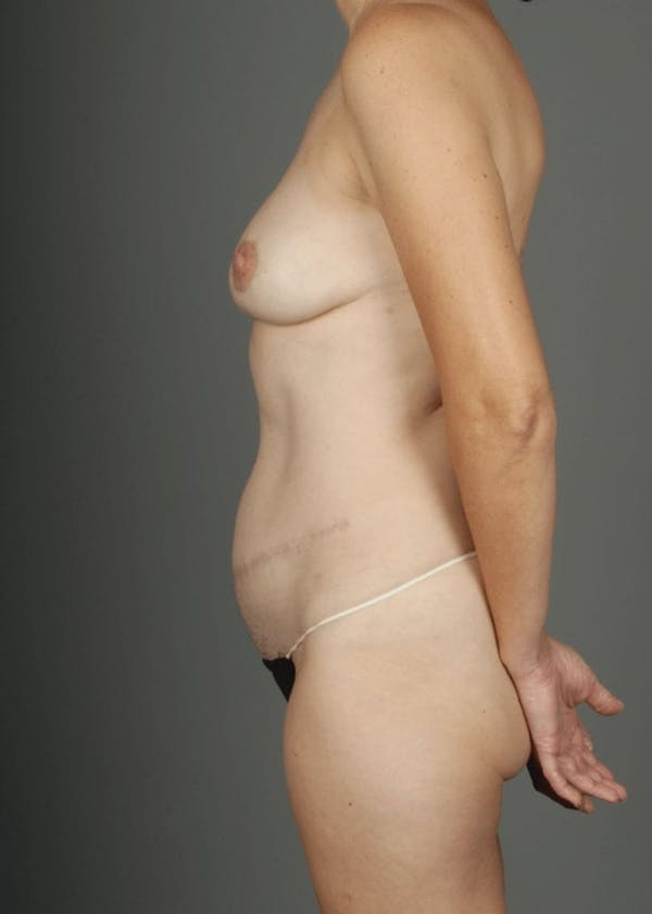 Deep Inferior Epigastric Artery Perforator Flap Gallery - Patient 4002547 - Image 8