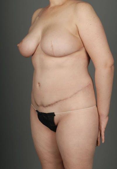 Deep Inferior Epigastric Artery Perforator Flap Gallery - Patient 4002549 - Image 6
