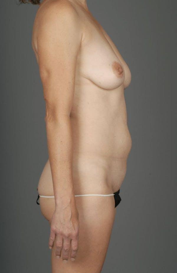 Deep Inferior Epigastric Artery Perforator Flap Gallery - Patient 4002548 - Image 8