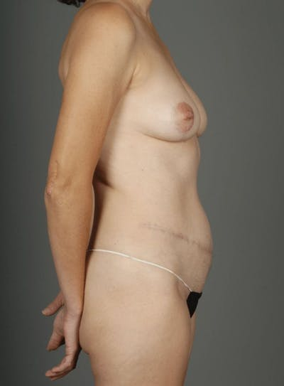 Deep Inferior Epigastric Artery Perforator Flap Gallery - Patient 4002547 - Image 10