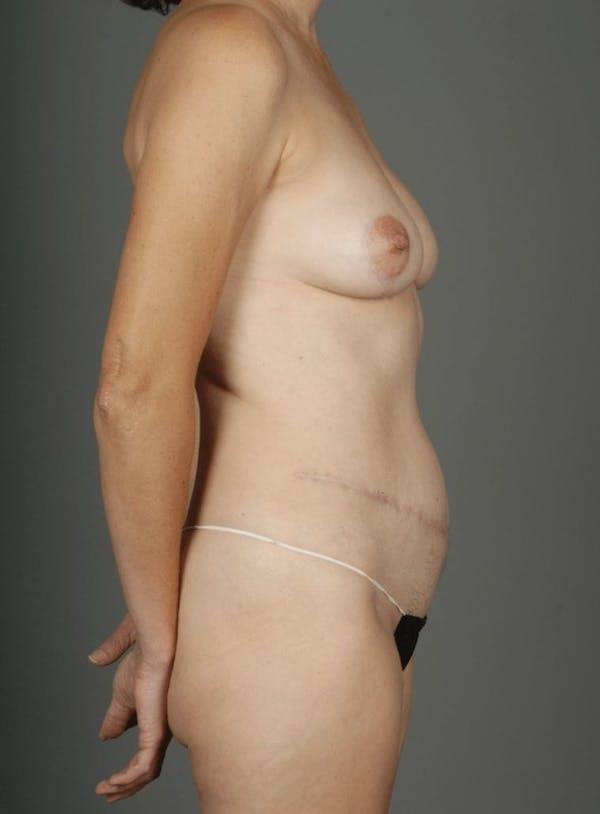 Deep Inferior Epigastric Artery Perforator Flap Gallery - Patient 4002548 - Image 9