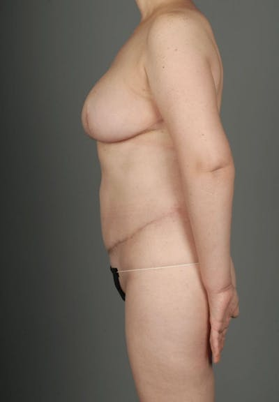 Deep Inferior Epigastric Artery Perforator Flap Gallery - Patient 4002549 - Image 8